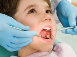 Спосіб лікування зубів без свердління і пломб