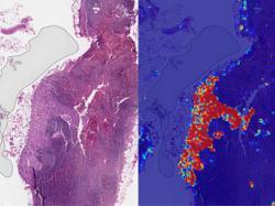 Штучний інтелект Google діагностує рак грудей краще за лікарів